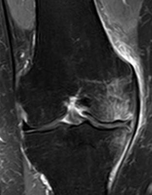 Abb. 2.3 Kniegelenksarthrose vor Behandlung
