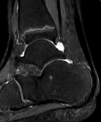 Abb. 3.2 Fußwurzel Diagnose CRPS nach Behandlung